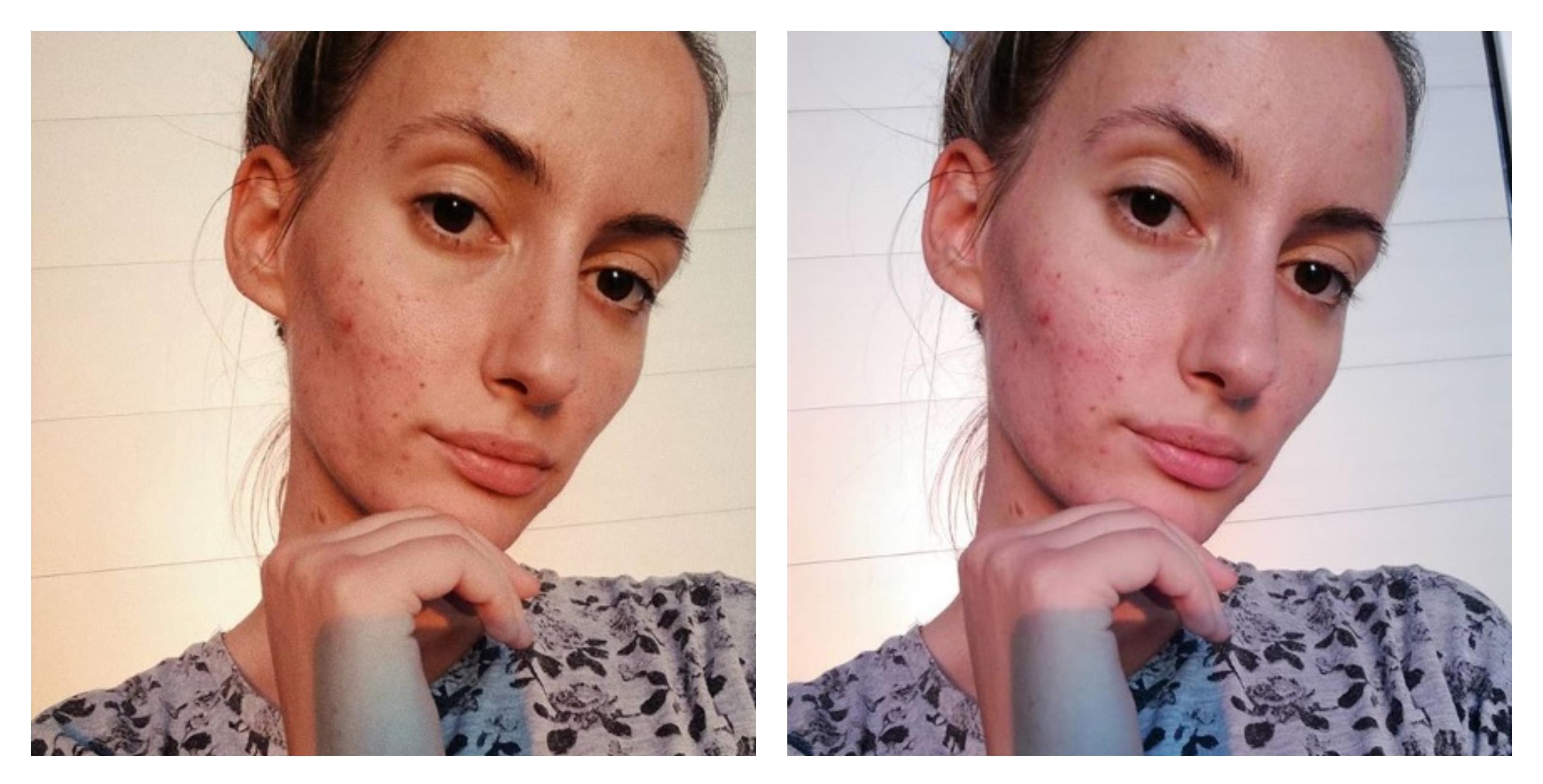 """Beauty blogerica: """"Je l' vam se digne samopouzdanje kad nekome tko ima akne kažete da posjeti kozmetičarku ili dermatologa?"""""""