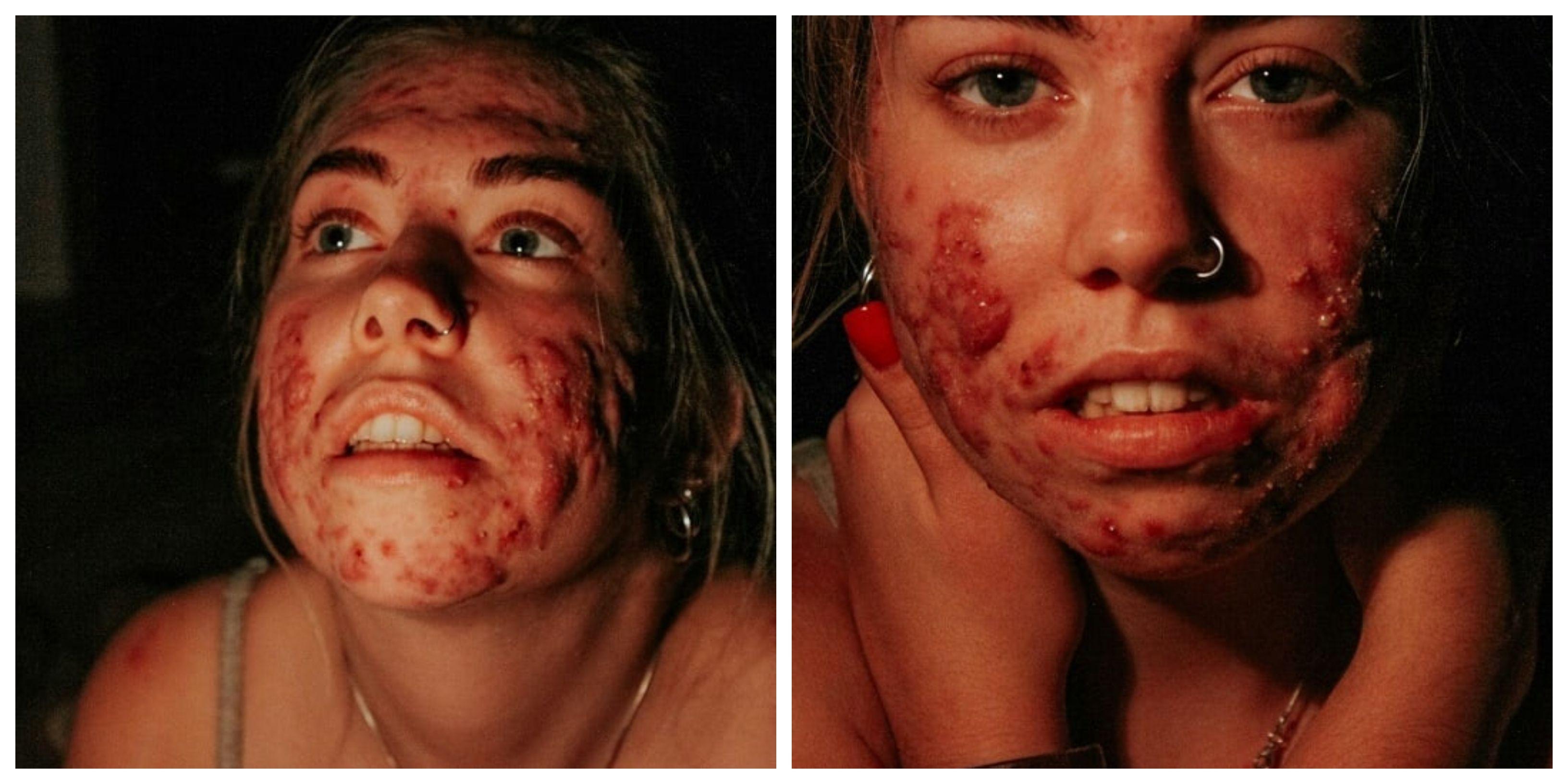 17-godišnjoj Puležanki rekli  da nema što raditi vani jer joj ni šminka ne pomaže; ona hrabro podijelila svoju priču