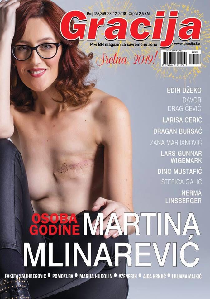 """Martina Mlinarević: """"Ništa mi od mene karcinom nije uzeo, iako fizički naizgled jeste. Naprotiv, samo me nadogradio"""""""