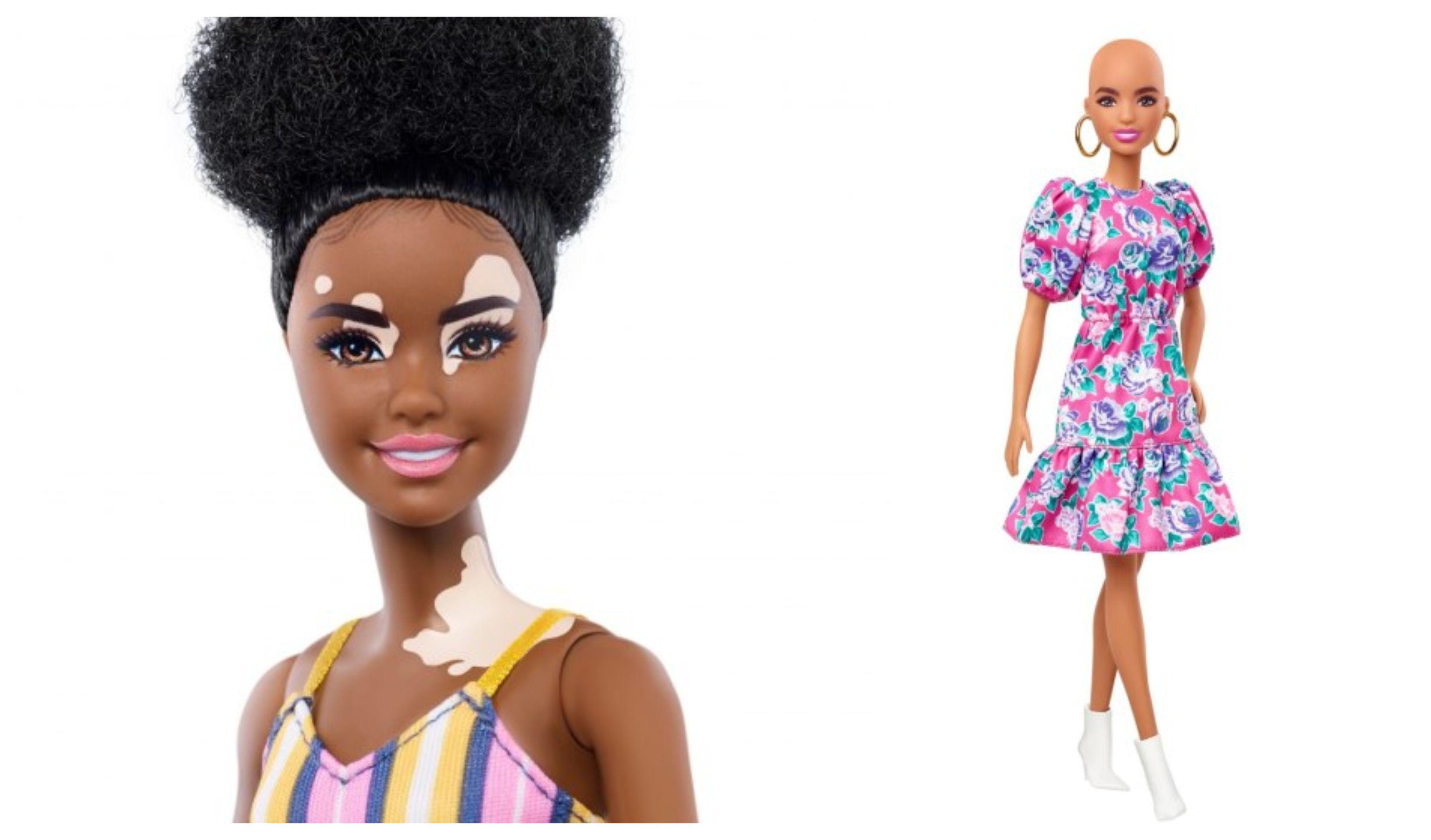 Šalju prekrasnu poruku djeci: Mattel lansirao Barbie lutke koje imaju vitiligo i alopeciju